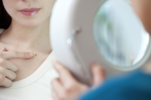 JAMA Dermatology Advocates Changes in Healthcare Melanoma Screening