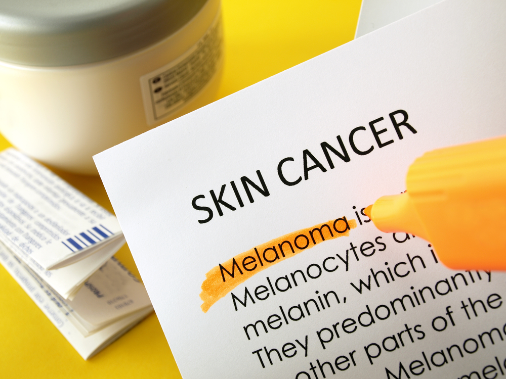 New Melanoma Drug Combination Improves Patient Survival Rate, According To Study