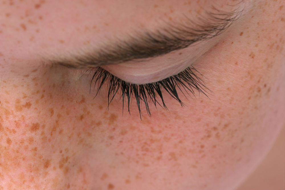 Study Finds Interactions Between UV Light and Genetic Variants Determinant For Childhood Nevus and Freckles