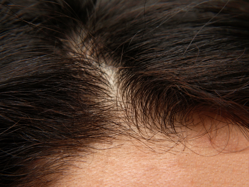 Study Finds Hair Shaft miRNA-221 Levels Can Be Used As Malignant Melanoma Biomarker