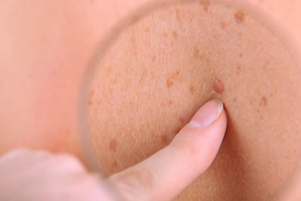 Malignant Melanoma Rates Up 155% Among Older Adults in UK Since 1990s