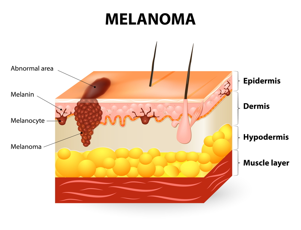 Gene Removal May Help Melanoma Treatment