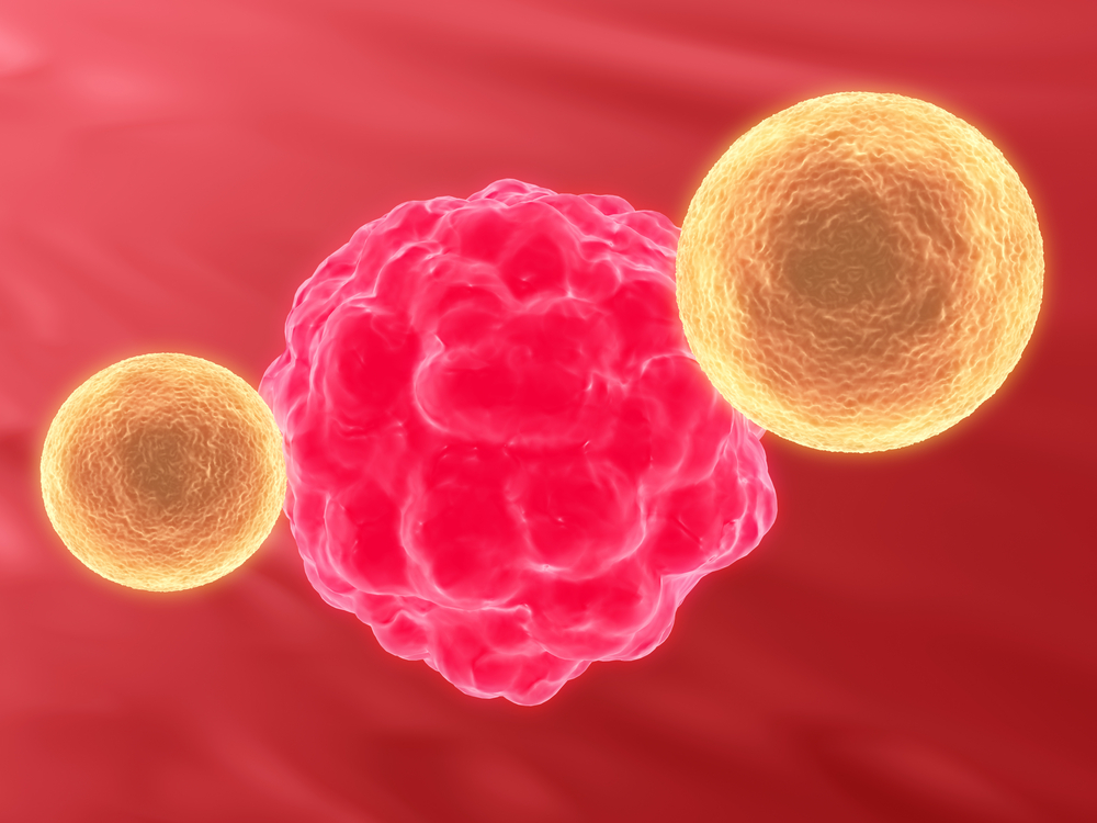 New Immunotherapy Reduces Tumors in Metastatic Melanoma Patients