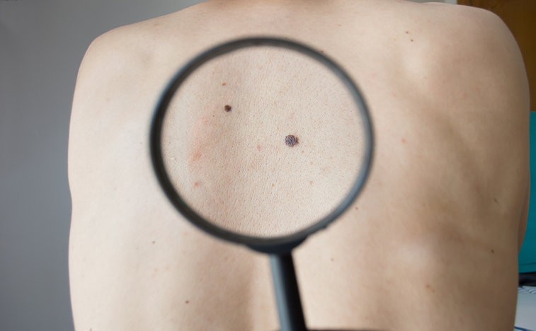 First Melanoma Patients Dosed in Trials of Investigational Drug PV-10
