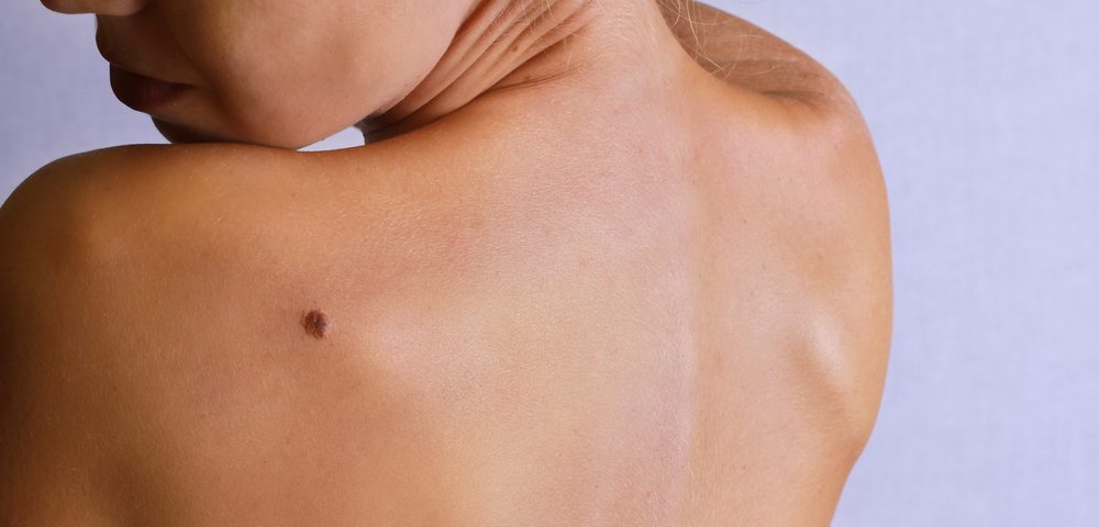 Melanomas Associated with Moles Have Better Prognosis Than Those Without Moles, Study Finds