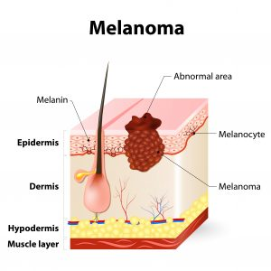 New Research Shows How Melanoma Cells Reach Blood Vessels, Reveals Chemicals for Prevention
