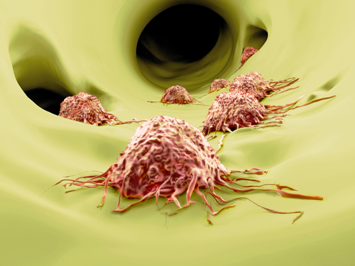 Study IDs Mechanism Underlying Metastatic Behavior in Melanoma Cells
