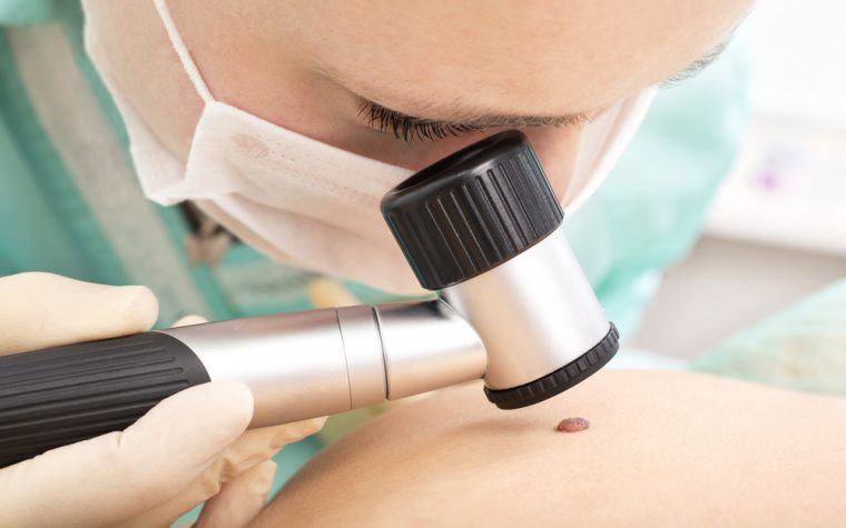 melanoma screening guidelines